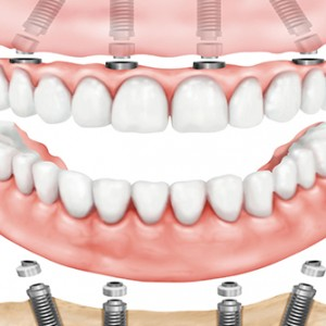 dort implant 300x300 - 4 Diş İmplant ve Sabit Diş Uygulaması