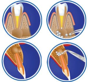 apikal rezeksiyon - Apical Resection (Resection Of The Root Tip)