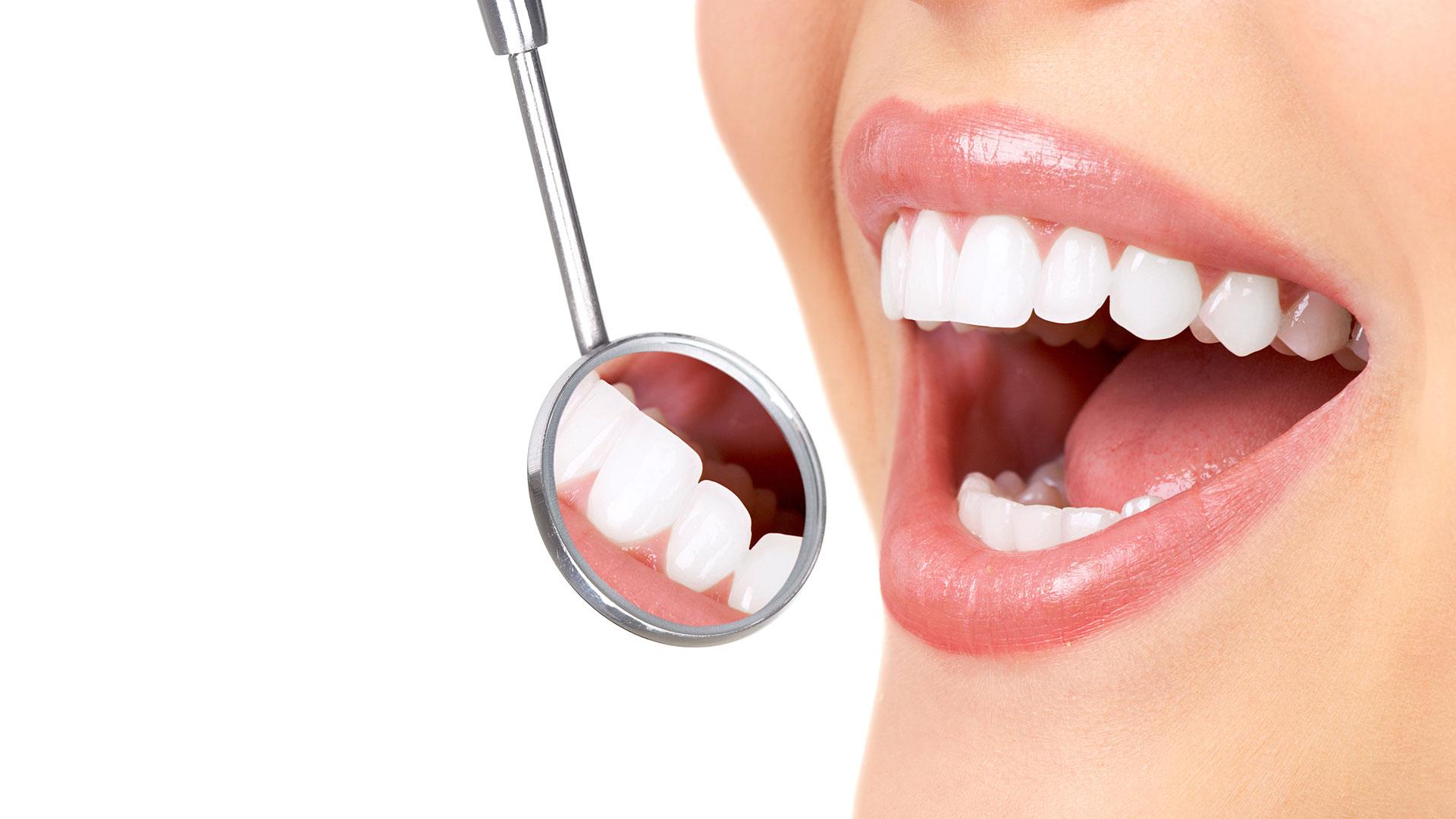 dis beyazlatma 1 - Teeth Whitening