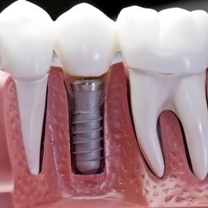 implant 5 300x300 - Implant