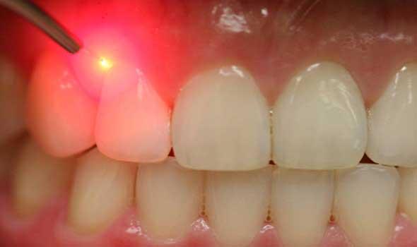 lazerle dis eti hastaliklari nasil tedavi edilir - Gum Diseases