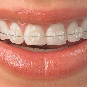 ortodonti 300x300 - Ortodonti