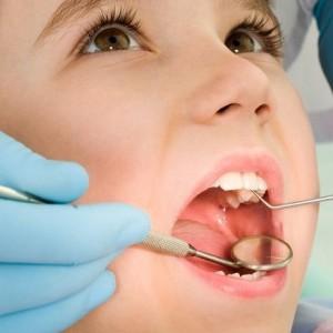 pedodonti 5 300x300 - Children Dentistry