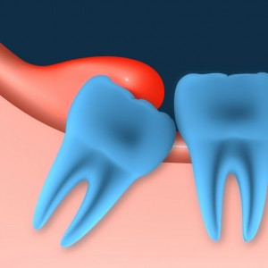 pericoronitis 2 300x300 - Embedded Tooth