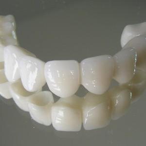 zirkonyum 72 300x300 - Zirconium Supported Porcelains