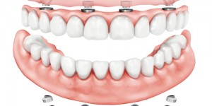 dort implant 3187hagl0qgrn6im4uf75s - Home
