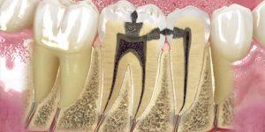 endodonti 5 31872wepoevdb5y52b5s00 - Home