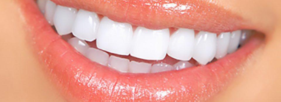 Gülüş Tasarımı, Estetik Diş, Ataşehir